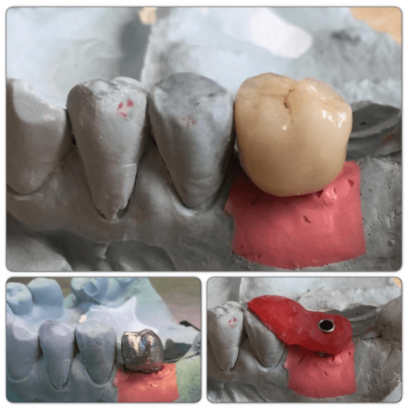 mis-implant cement retained restoration