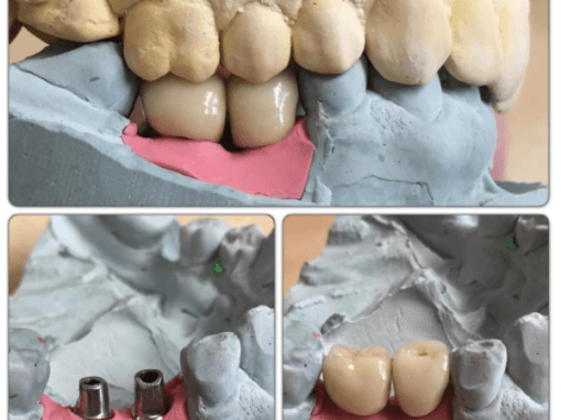 Two completed mis-implant restorations on Transgingival cement retained abutments
