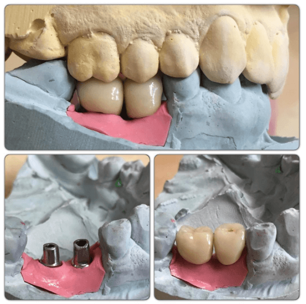 Two completed #misimplant restorations on Transgingival cement retained abutments